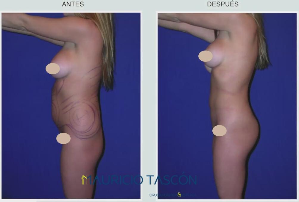 perfil izquierdo del antes y el despues de la lipoescultura
