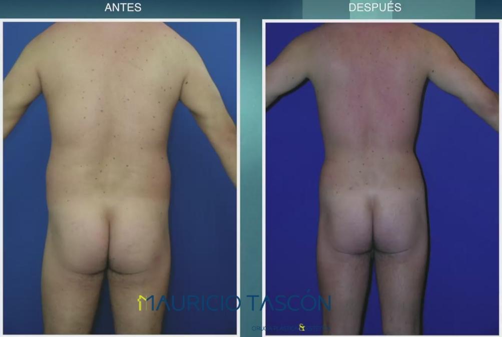 caso de lipoescultura en hombre de espaldas